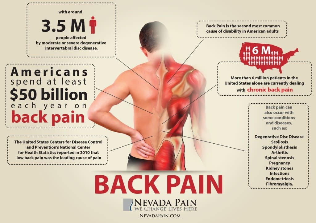 Back Pain Infographics