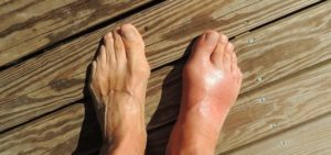 How To Relieve Bunion Pain