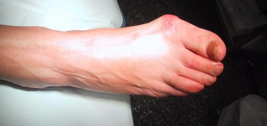 How to Prevent a Bunion from getting Worse